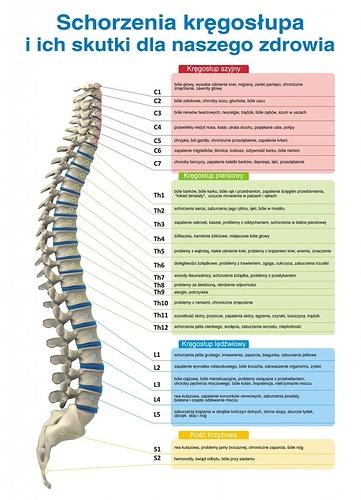 schorzenia-kregoslupa-a-skutki-dla-zdrowia-741x1024